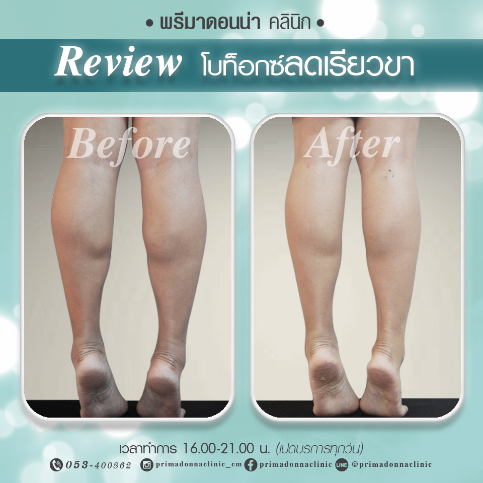 Calf reduction