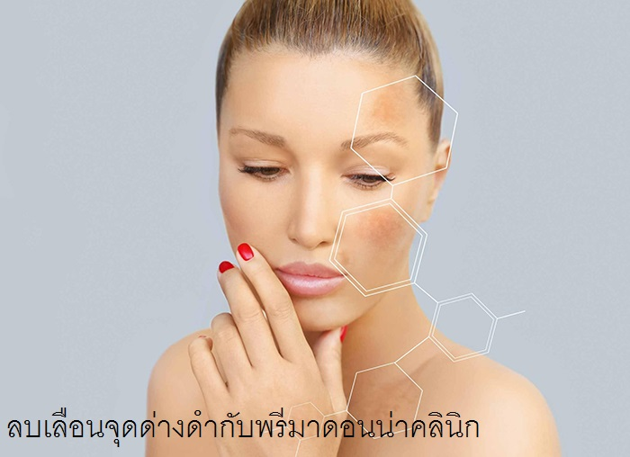 How to get rid of Hyperpigmentation in Chiangmai