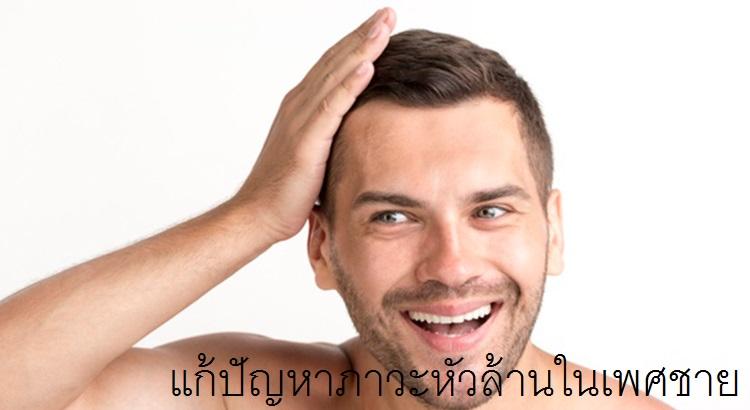 แก้ปัญหาภาวะหัวล้านในเพศชายกับพรีมาดอนน่าคลินิก