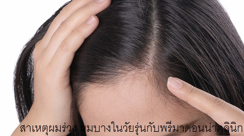 Tips to cover thinning hair
