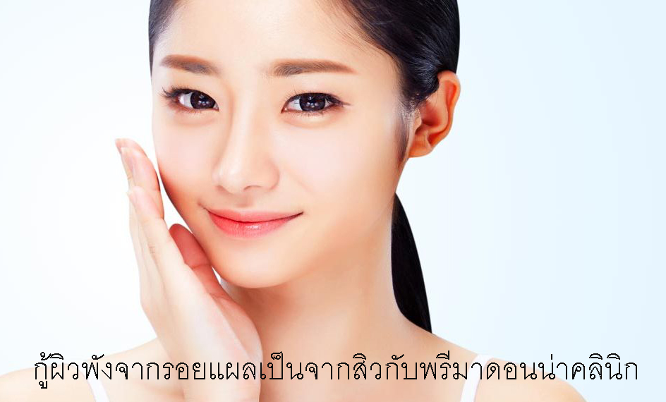 Laser treatment for acne scars in Chiangmai
