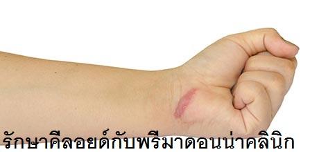 Keloid Scar Treatment in Chiangmai
