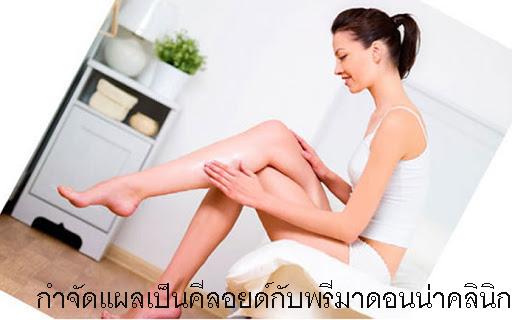 Laser Keloids Scar Treatment in Chiangmai