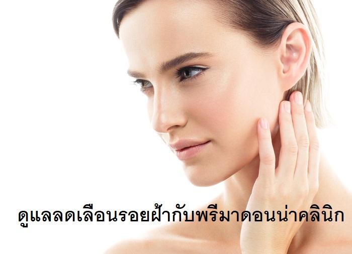Treatment of Melasma in Chiangmai