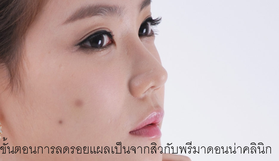 Acne Scars Treatments in Chiangmai