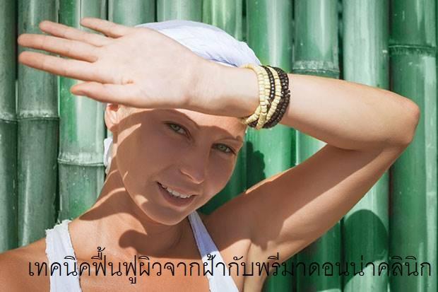 What's Melasma in Chiangmai