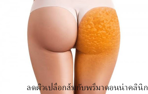 Venus Legacy for Cellulite Reduction in Chiangmai