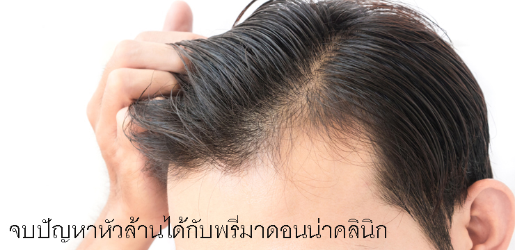 What causes hair loss?