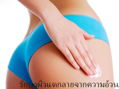 Stretch Mark Removal in Chiangmai