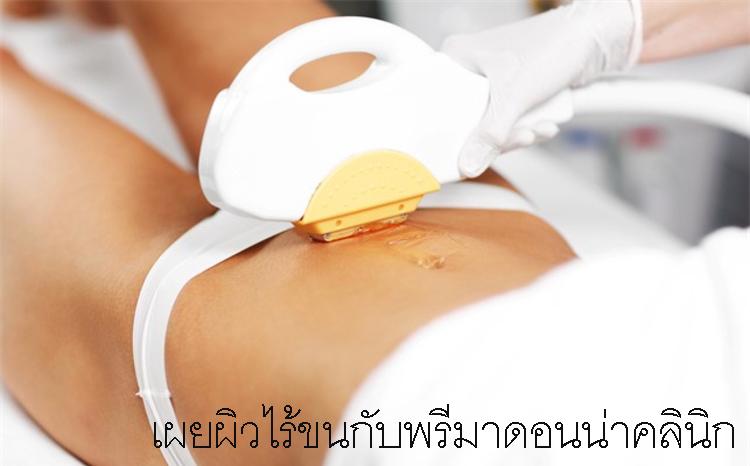 Hair Removal Chiangmai