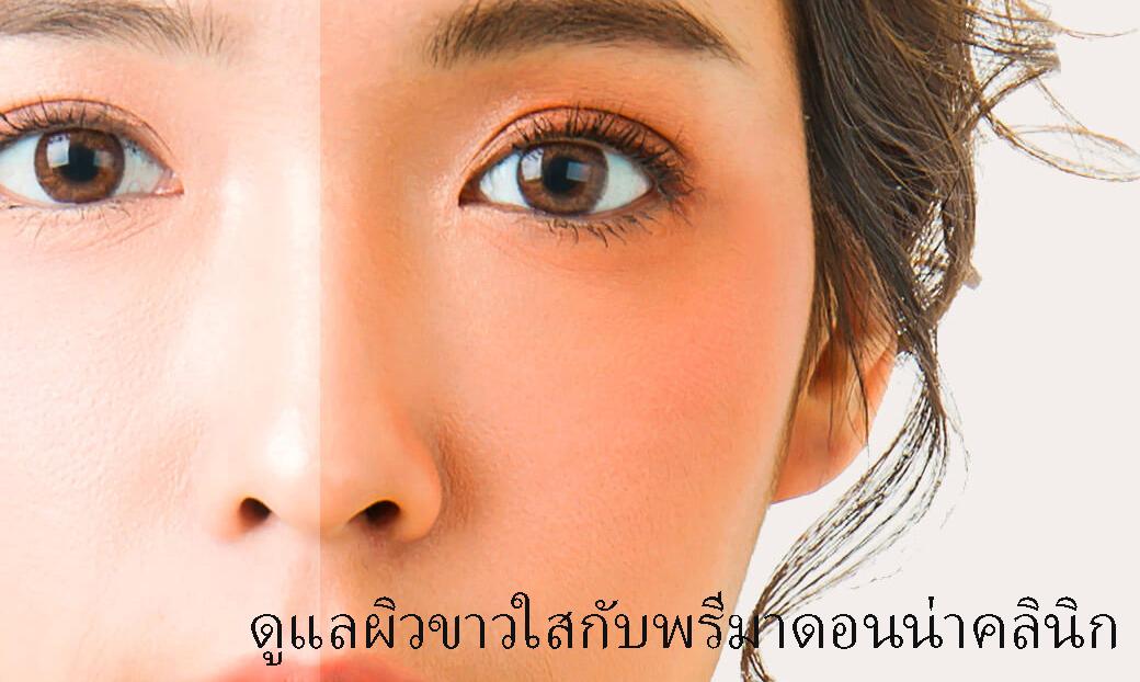 Skin Whitening in Chiangmai