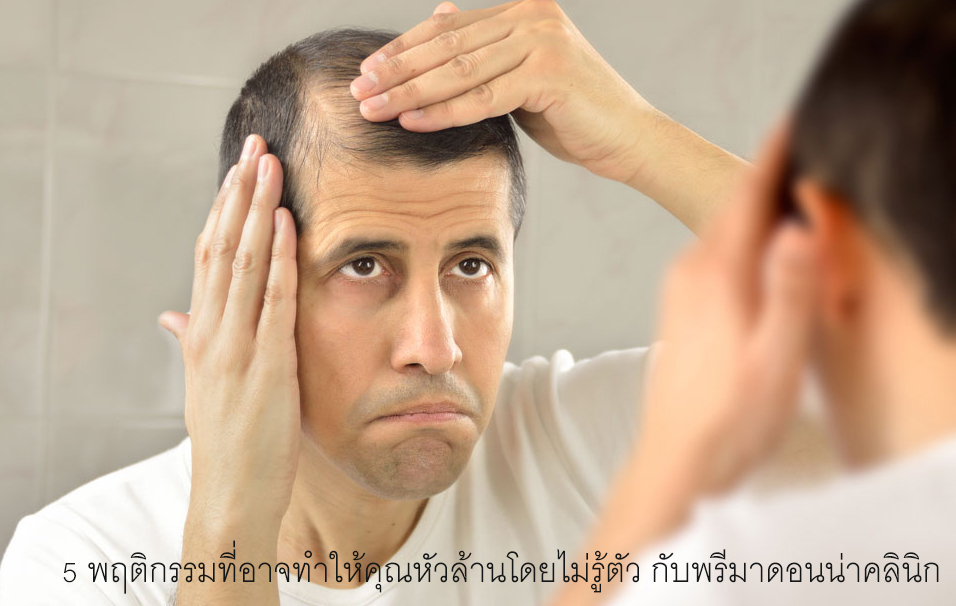 What Is Hair Loss (Baldness)?