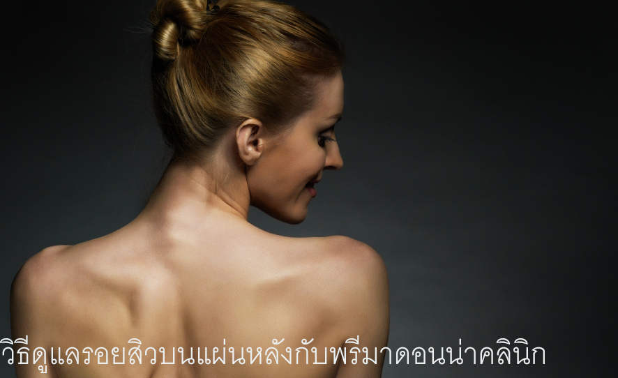 Back Acne Removal in Chiangmai