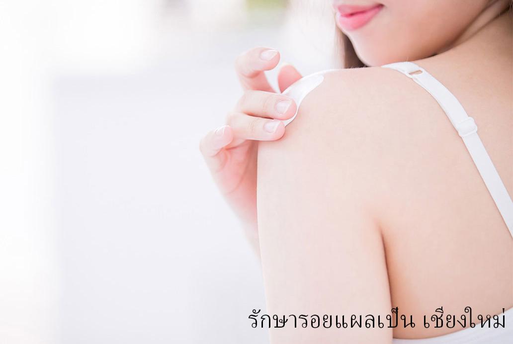 Scar removal in Chiangmai