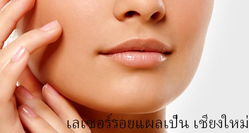 laser scar removal in Chiangmai