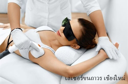 Laser Hair Removal Chiangmai