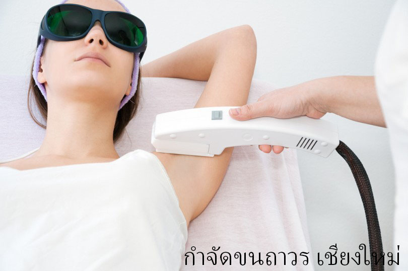 Hair Removal Chiangmai