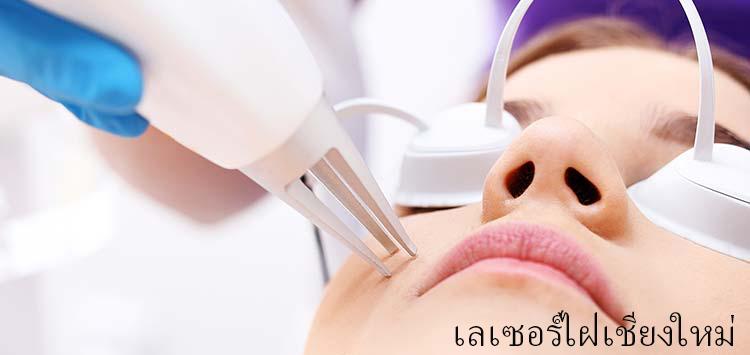 Laser mole removal at Chiangmai