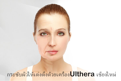 Wrinkle Removal with Ultherapy in Chiangmai