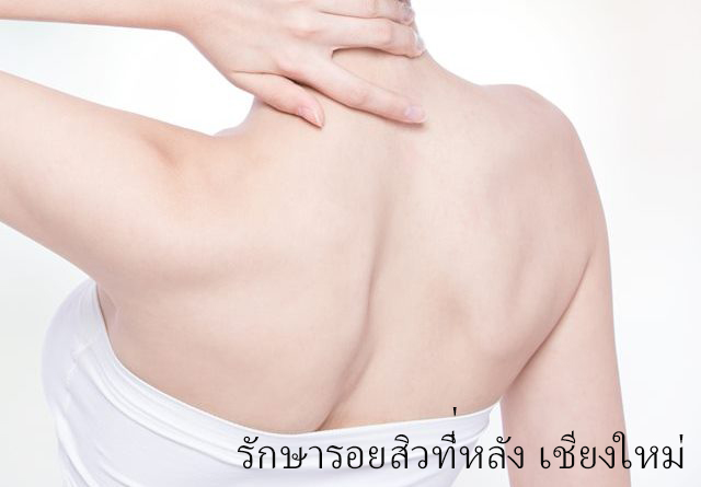 Back acne treatment in Chiangmai