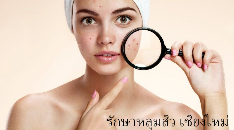 Acne Scar Revision in Chiangmai