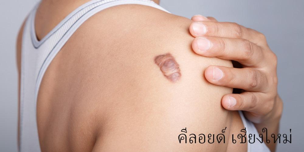 Keloid Scar in Chiangmai